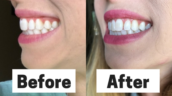 teeth whitening review before and after Teeth Whitening for Sensitive Teeth